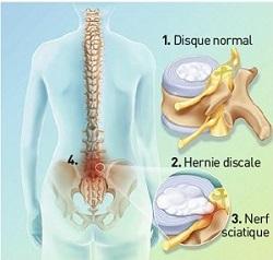 Les douleurs à droite sous les côtes rendent au dos